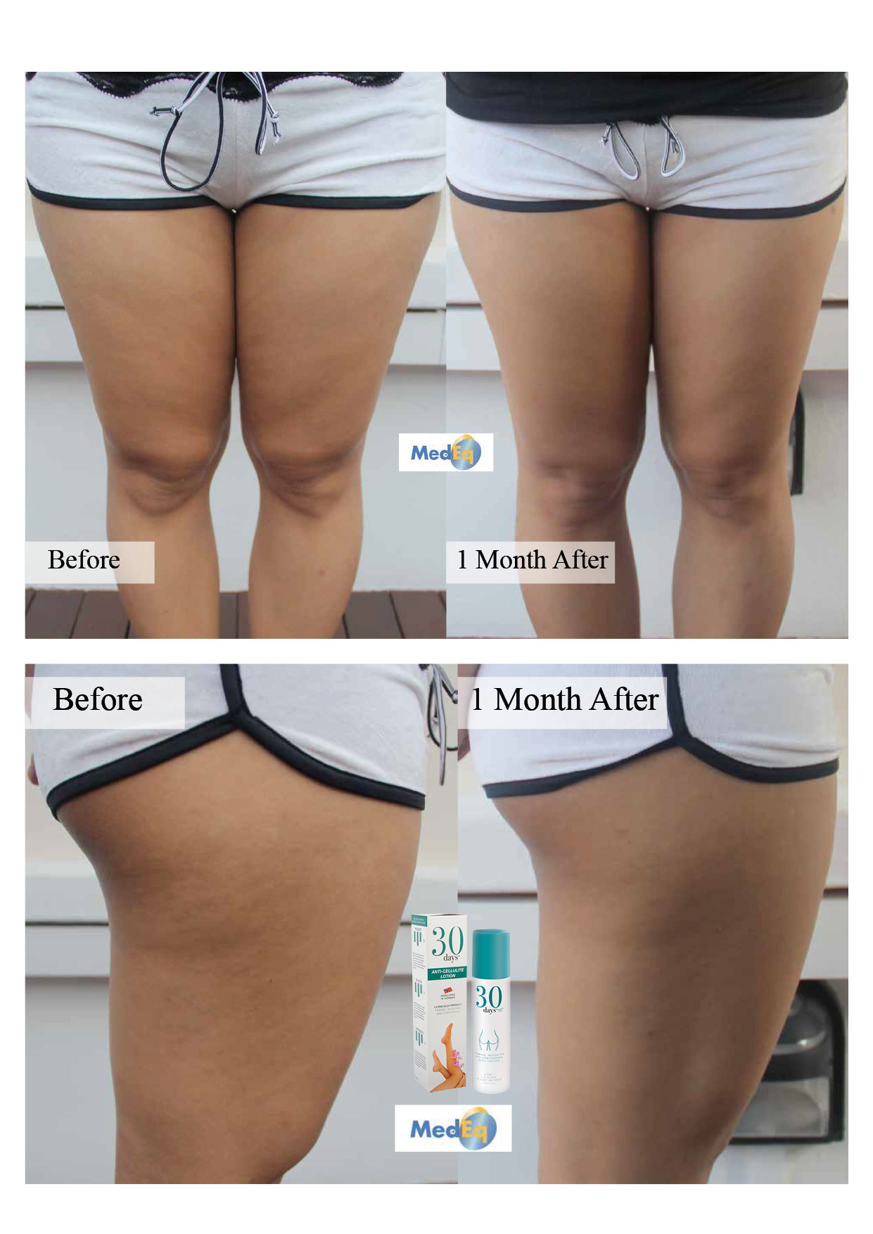 30days Anti-cellulite Lotion Before & After Review